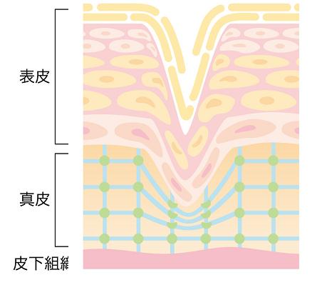 コラーゲンの減少した肌
