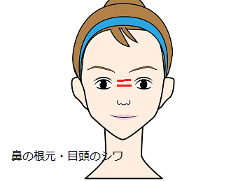 鼻の根・目頭のシワ