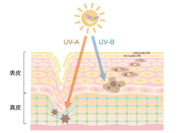紫外線による肌のダメージ
